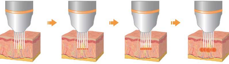 Imagen métodos para tratamiento facial y corporal
