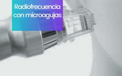 Radiofrecuencia con microagujas